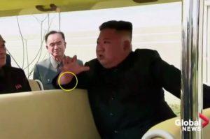 מוקף בעיגול: סימן בגף ידו הימנית של קים